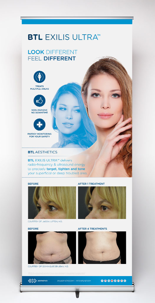 Exilis Ultra Pull-up Banner - Female
